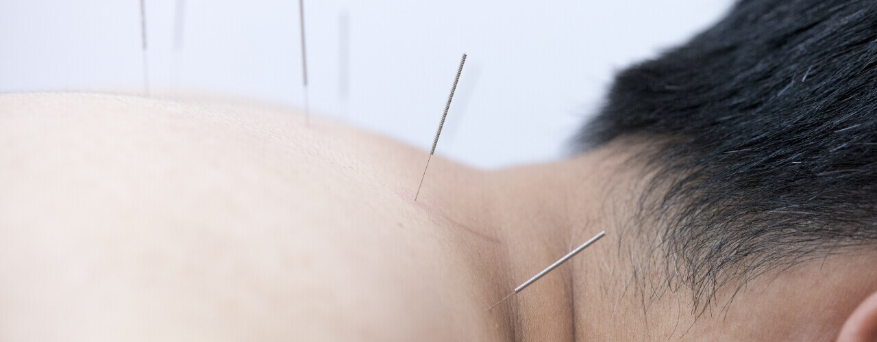 Find Effective Relief for Your Pain with Acupuncture